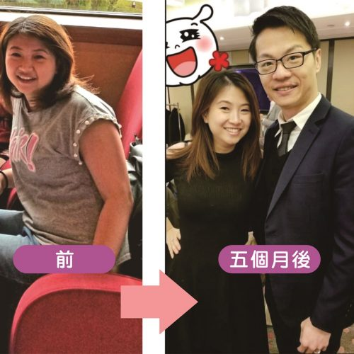 pic_yoyo_lo_before_and_after